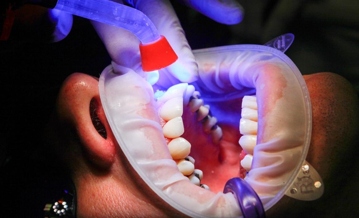 zubař a pusa